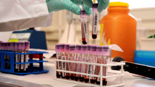 A lab technician works on blood samples collected for anti-doping purposes (Image: AAP)