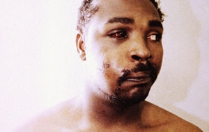 Rodney King photographed after his beating by police. (AAP)